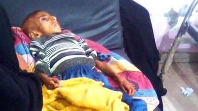 طفل يفارق الحياة بسبب سوء التغذية بلحج