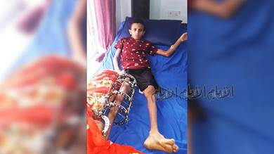 لطفل عبدالله عبد الفتاح.. ثنائية الألم والإرادة!
