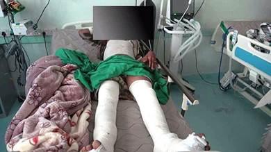 احد عناصر الحوثيون جراء اصابته بمحاولة التسلل