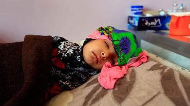 39 وفاة بالسرطان في منطقة بردفان