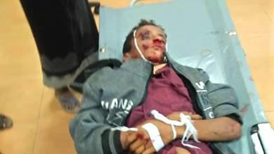 وفاة طفل مجهول الهوية بحادث في لحج