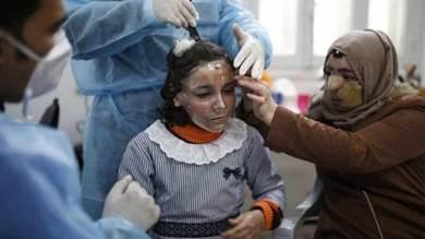 الطفلة الفلسطينية مرام العماوي تضع قناعها الطبي لمعالجة حروقها