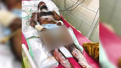 أحد الجرحى المرقدين في قسم العناية المركزة