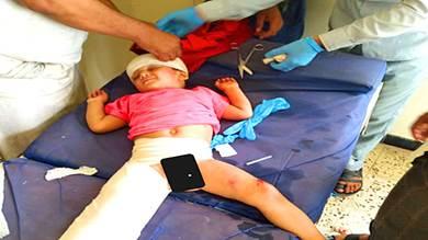 سقوط طفل نازح من شرفة مبنى بالضالع